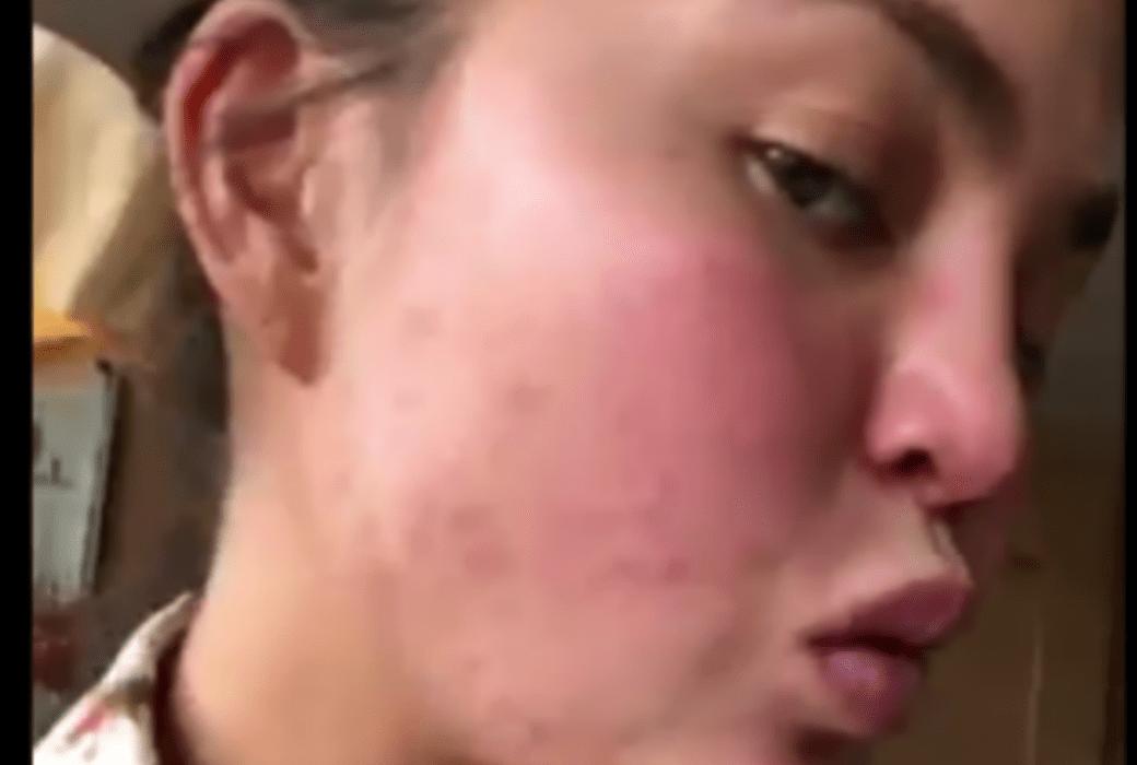 Chrissy Teigen's Face Rash Goes Viral, Gets Meme Treatment