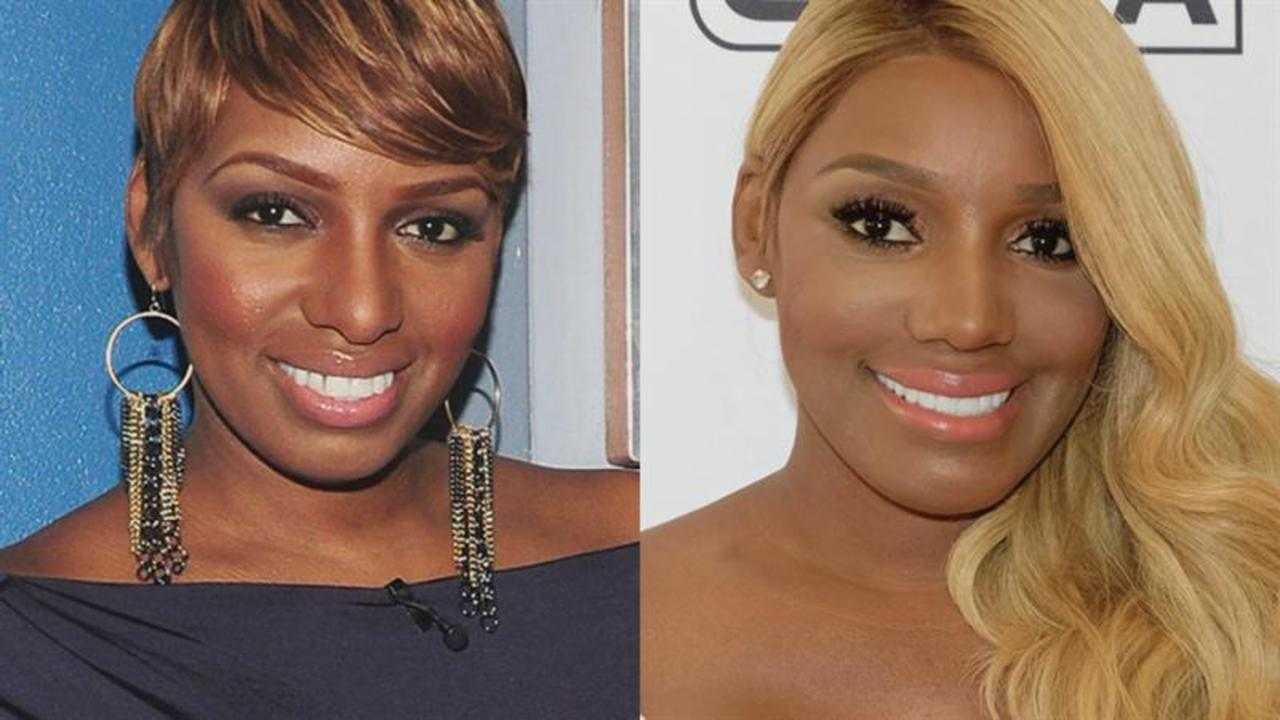 nene-leakes-fans-are-debating-the-rhoa-stars-nose-following-her-latest-posts