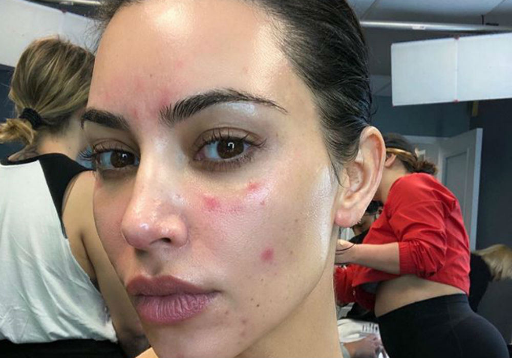 Kim Kardashian Opens Up About Her Struggle With Psoriasis - 'The Pain Was So Unbearable'