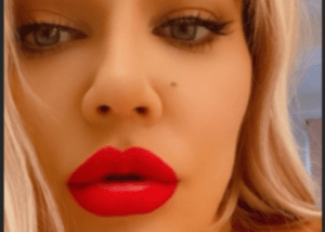 Khloe Kardashian Slammed Again As Her Lips Appear Enormous In New Photos