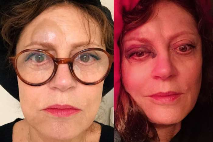 Susan Sarandon Shares Shocking Photos After Fall — Thelma And Louise Actress Suffered Concussion, Fractured Nose
