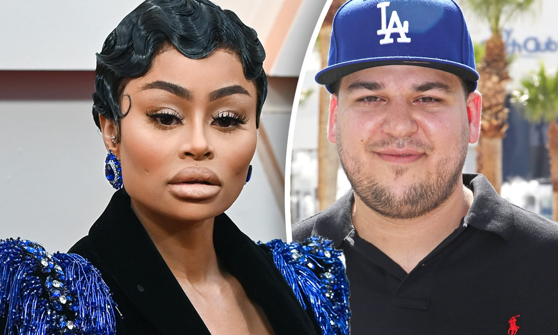 """""""kuwk-rob-kardashian-responds-after-blac-chyna-accuses-him-of-neglecting-their-daughter-dream-leading-to-first-degree-burns-while-in-his-care"""""""