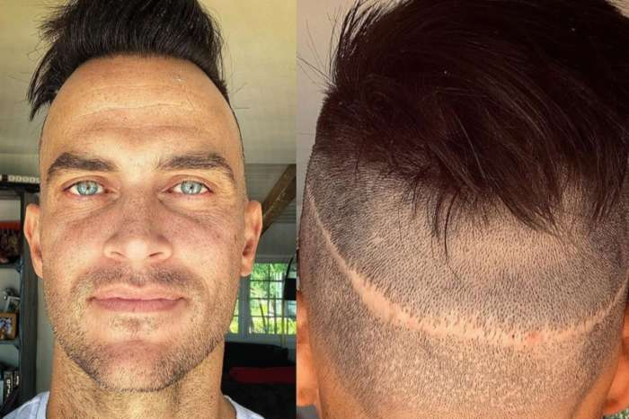 Cheyenne Jackson Shows Off Massive Hair Transplant Scar — Ouch!