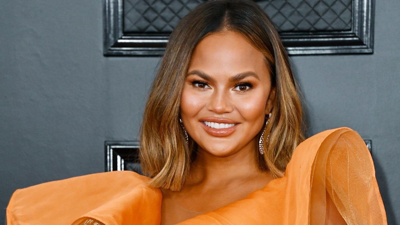 chrissy-teigen-insists-her-massively-swollen-lips-are-a-result-of-biting-into-an-orange-and-not-lip-injections