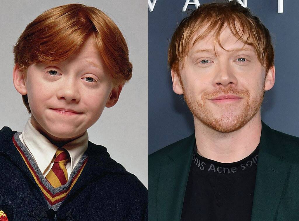 rupert-grint-admits-it-felt-suffocating-shooting-harry-potter-for-10-uninterrupted-years